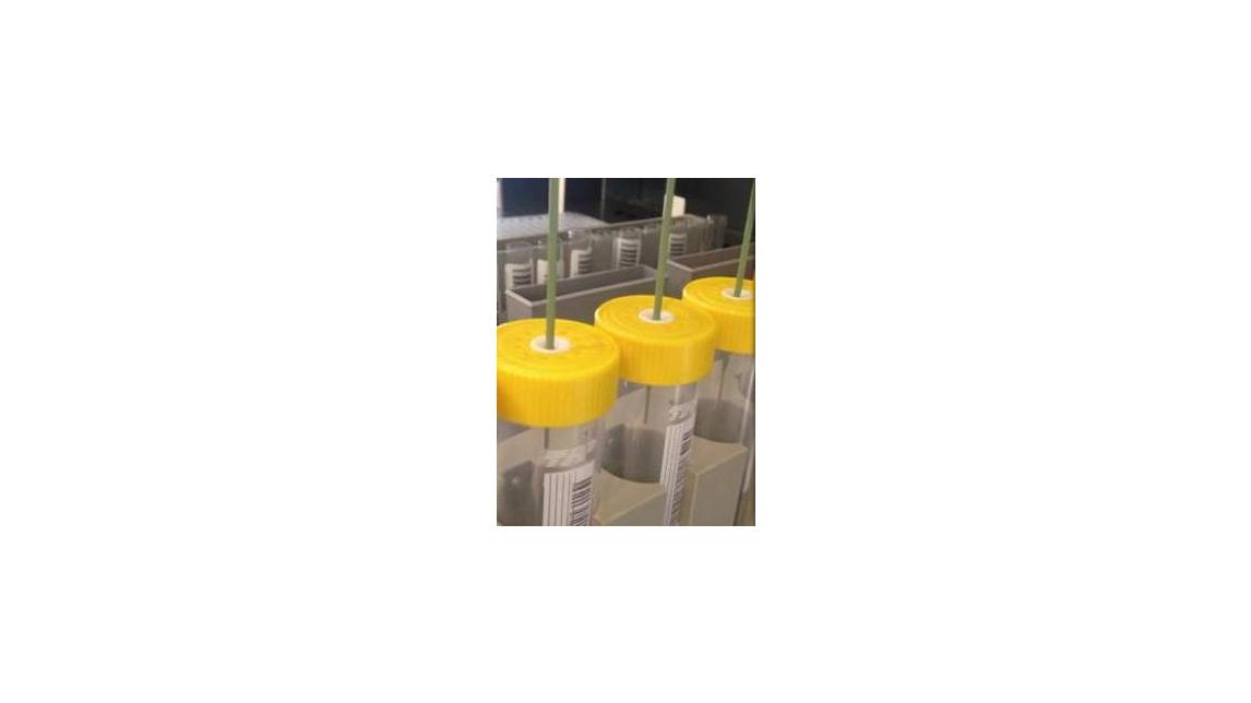 Logo TubeSpin® Bioreactor 50 with Septum